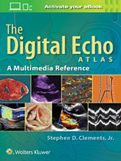 clements_digital_echo