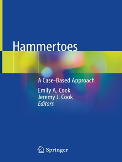 cook_hammertoes