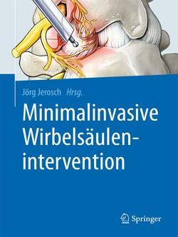 jerosch_mis_ws_intervention