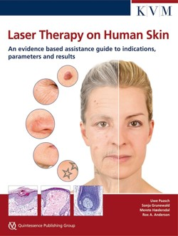 paasch_lasertherapy