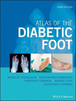 tentolouris_diabetic_foot_3a