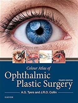 tyers_ophthalmic_plastic_surgery_4a